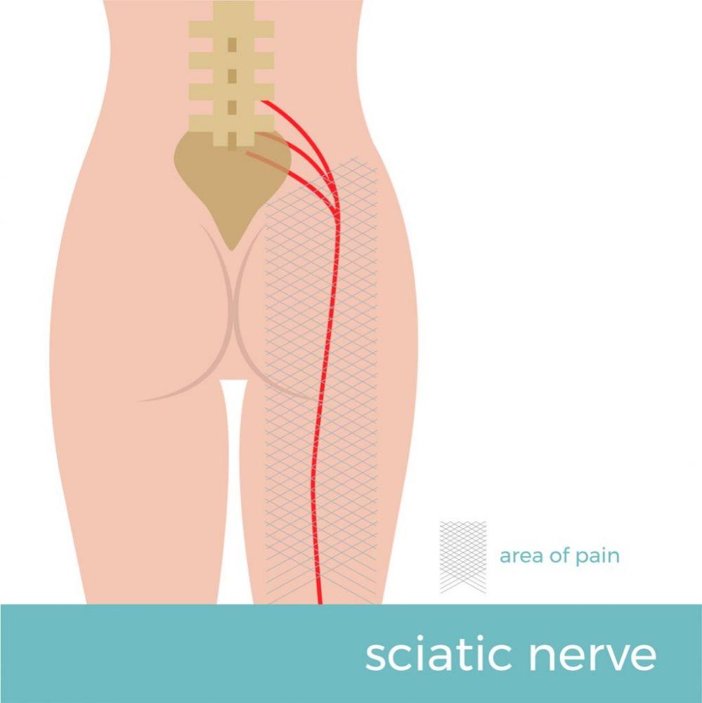 A dor no nervo ciático pode ser causada por diversas razões - como má postura, sobrepeso, sedentarismo, passar muito tempo sentado, tumores, diabetes e vírus da herpes ou da catapora.