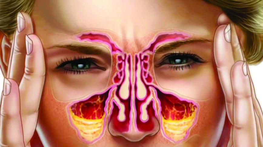 Renite, sinusite, alergias e resfriado como resolver?